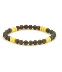 W177 Cherry Amber Milky Tablet Bracelet on Elastic Band