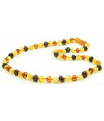 Baroque Amber Adult Necklaces A1